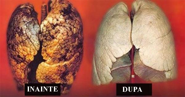 metode naturale curatare plamani de nicotina si gudron