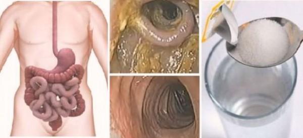 cura detoxifiere elimina toxine ficat colon rinichi 48 h