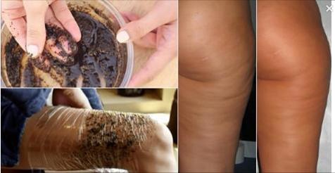 impachetari cu cafea impotriva celulitei