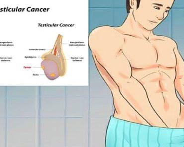 Simptome de cancer testicular care sunt deseori ignorate