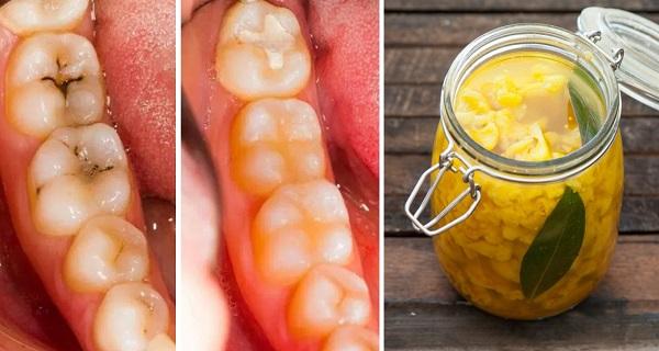 cum sa tratezi cariile acasa fara dentist